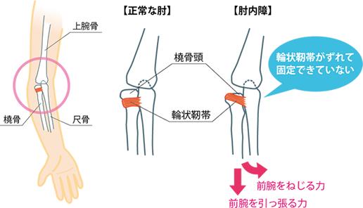 小児の肘内障・肘の脱臼